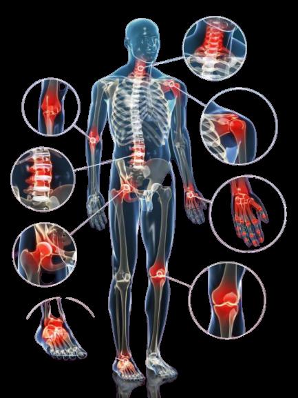 Les articulations touchées par l'arthrose